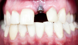 Healthy dental implants will provide patients with many benefits