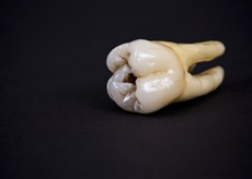 Ancient tooth with dental implants
